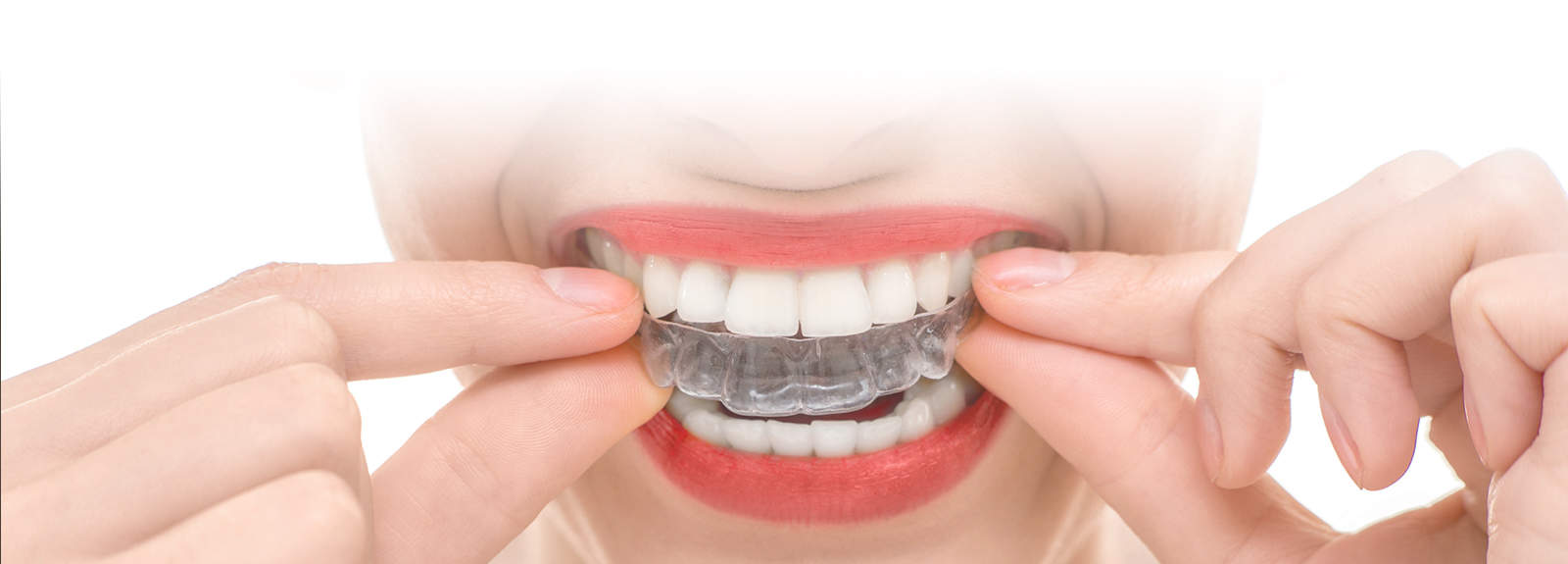 Invisalign Burlington
